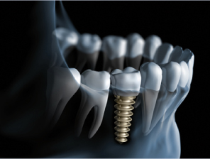implanto_thumb_07